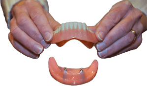denture being placed on dental implant