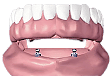 Illustration of an implant supported denture